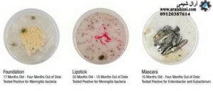 آلودگی باکتریایی